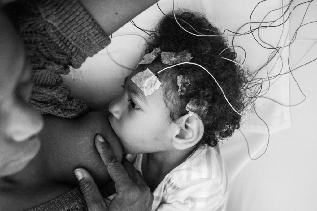Eliana Corcino Mina, 38, breastfeeds her daughter Samara, a 2-year-old girl with microcephaly associated to Zika, with the purpose of making her sleep for an encephalogram, carried out in the Neurofic center, west of Cali, city of Colombia. April 9, 2019.