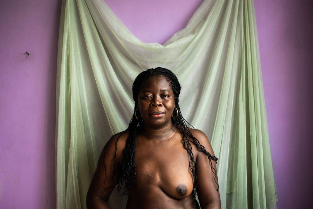 """Nancy Martínez, 38: """"I was not the exception among all those women whose partner has abandoned after losing a breast. That is one of the two most important attributes for every woman, because it shapes the body, and the other is the hair, which I also lost in October 2017""""."""