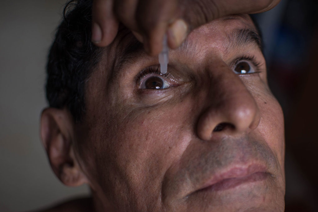 Hernán Lozano suffered more than 140 fractures after a crash of an elevator in the Justice Palace of Cali, where two people died in August 15, 2018. Due to the injuries that Lozano suffered around his right eye, he has to apply drops to soothe the pain. May 24, 2019.